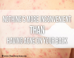 Inconvenience of back acne.