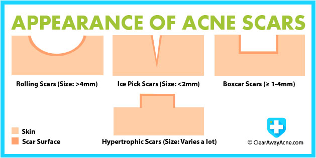 Acne Scars Types And Appearance.