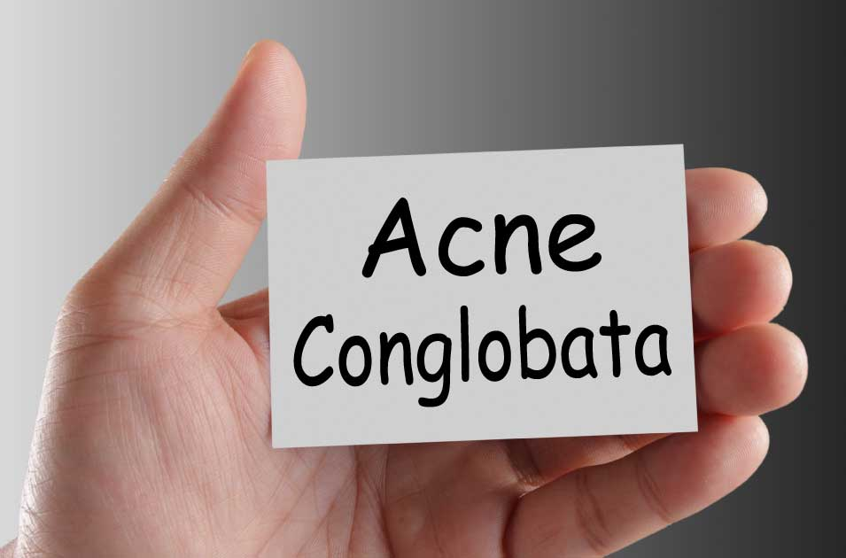 acne conglobata treatment and causes.