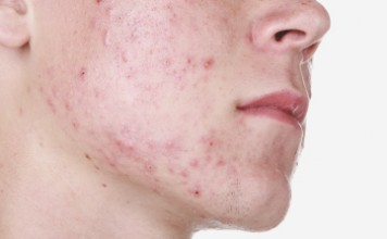 Conscoius boy asking how how to get rid of cheek acne.