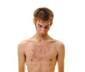 Poor boy wondering how to get rid of chest acne.