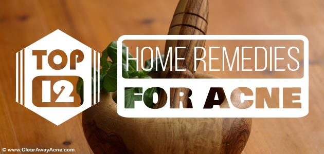 Top home remedies for acne.