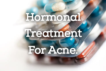 Hormonal treatment for acne.