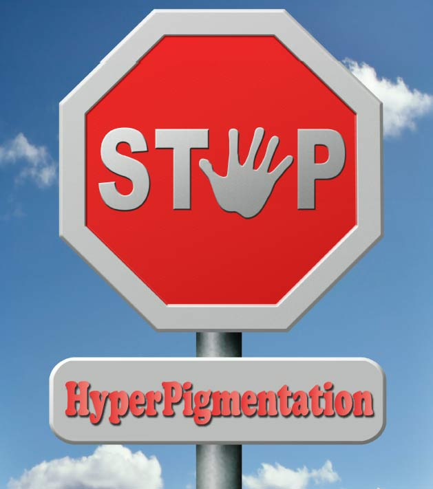 how to treat hyperpigmentation effectively.