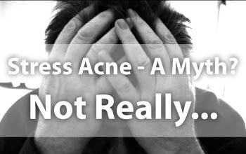 How to get rid of stress acne the right away.