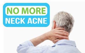 How to get rid of neck acne the right way.