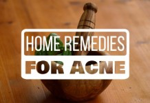 Best home remedies for acne that really work.