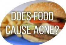 Acne-diet relation reloaded: discovering foods that cause acne.