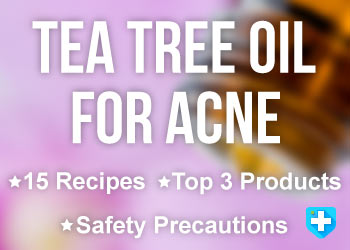 Tea Tree Oil For Acne: 15 Proven Home Remedies You Can Try