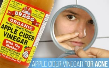 Organic apple cider vinegar for acne.