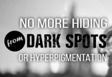 how to get rid of hyperpigmentation from acne