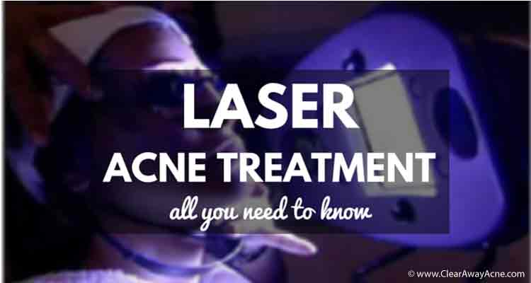 LASER-acne-treatment-all-you-need-to-know