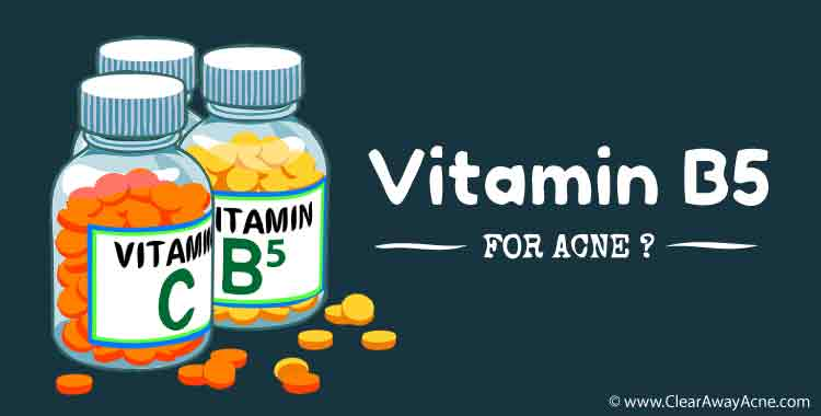 Vitamin B5 for acne. It is worth it?