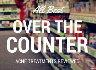 best over the counter acne treatments