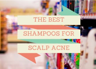 shampoo for scalp acne treatment