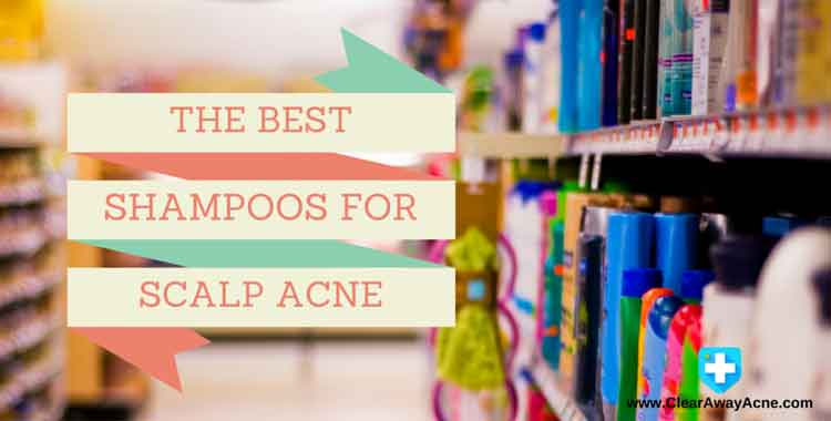 Best scalp acne shampoo reviews.