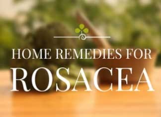how to get rid of rosacea with best home remedies