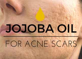 jojoba oil for acne scars