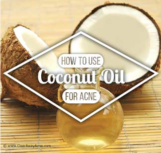 How to use coconut oil for acne treatment with best home remedies