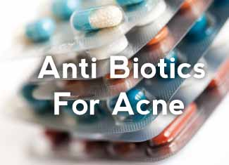 prescriptive-anti-biotics-for-acne