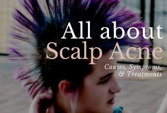 scalp acne treatment and causes.