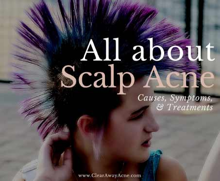 scalp acne treatment, causes, and symptoms.