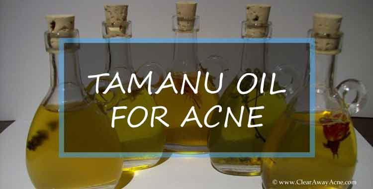 Tamanu oil for acne