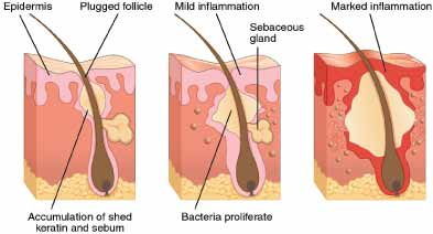 acne development cycle excessive oil pore clogging bacterial growth inflammation