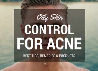 How to Get Rid of Oily Skin – 12 Expert Tips to Clear & Prevent Acne for Good
