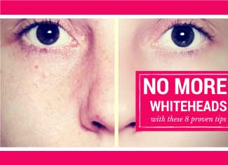 How to Get Rid of Whiteheads Once and For All | CAA