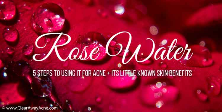 Rose water for acne treatment