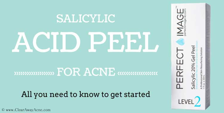 salicylic acid peel for acne