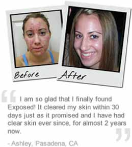Ashley-exposed-skin-care-reviews-pictures-before-after