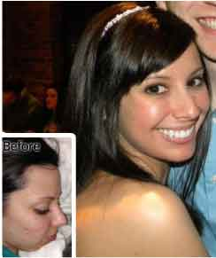 Rachel_exposed-skin-care-reviews-pictures-before-after