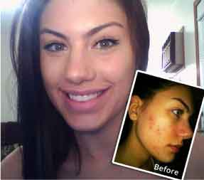 Stephanie_Before-and-After-exposed-skin-care-reviews-photos