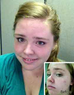 exposed-skin-care-reviews-pictures-before-after