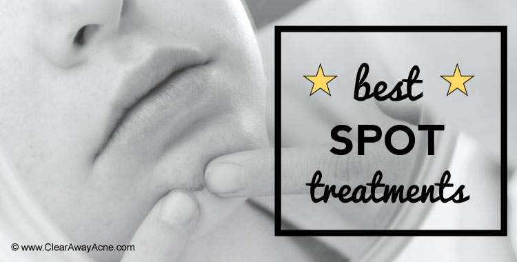 A rundown of the best acne spot treatments you'll ever see.