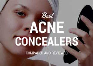 Quest for the best concealer for acne prone skin.