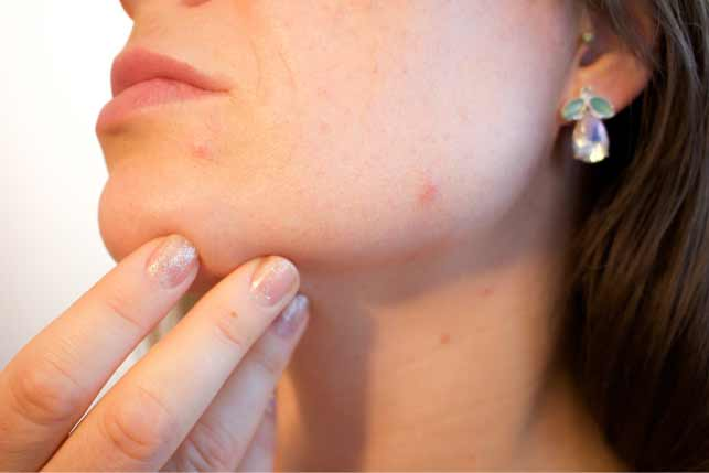 Hormonal acne treatment and causes.