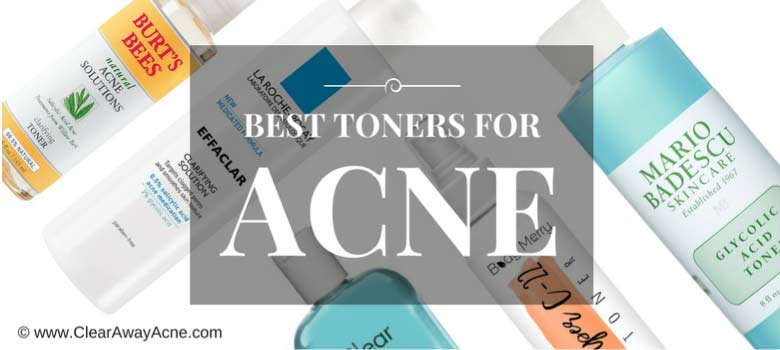 Reviewing the 20 Best Toners and Astringents for Acne Prone Skin on the Planet