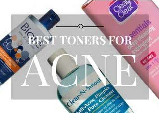 Top 20 Acne Toners and Astringents Reviewed