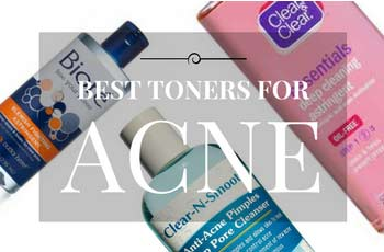 20 Best Toners & Astringents For Acne in 2017