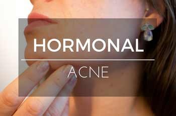 A Rundown of Hormonal Acne – Treatments and Prevention