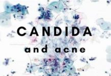 Candida and acne relationship