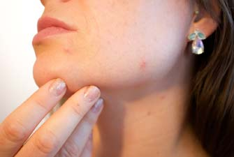 Girl suffering from hormonal acne due to estrogen