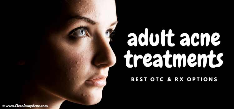 Acne adult treating
