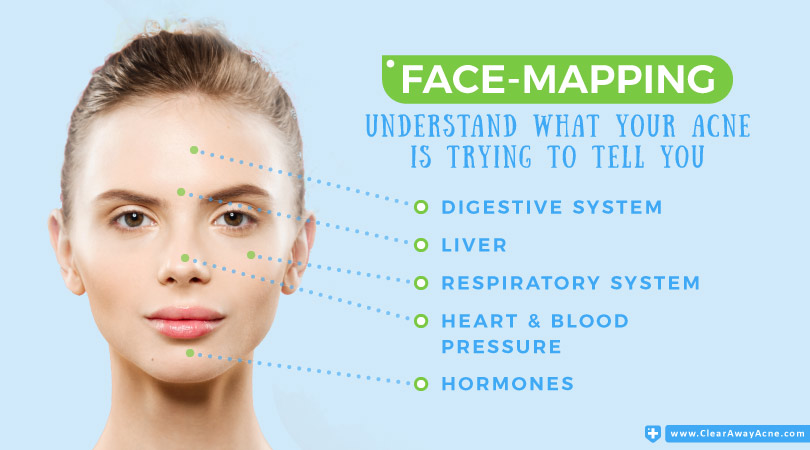 Acne Face Mapping - The Introduction