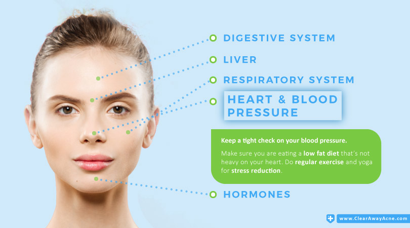Nose Acne Face Mapping - Heart and Blood Pressure