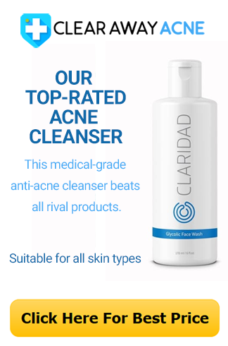 Our #1 Rated Acne Fighting Cleanser