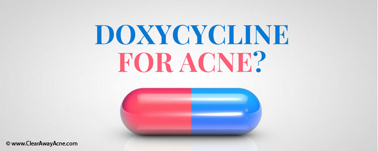 Doxycycline for acne treatment - Fact Checking